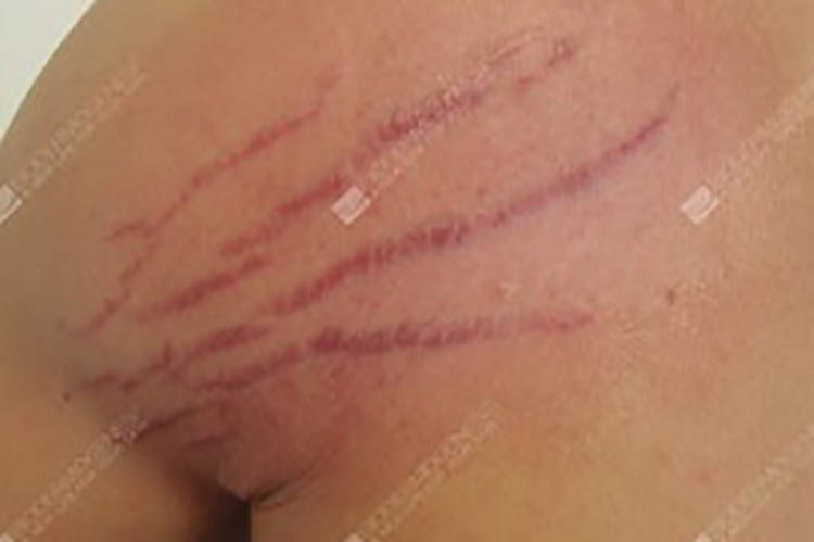 stretch-marks-before-fusiong-gt